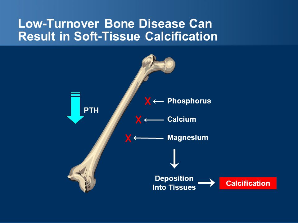 Low-Turnover Bone Disease Can Result in Soft-Tissue Calcification