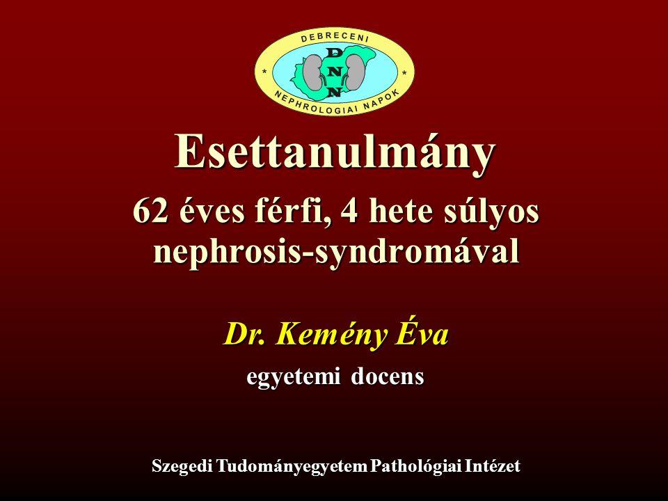 nephrosis-syndromával Szegedi Tudományegyetem Pathológiai Intézet