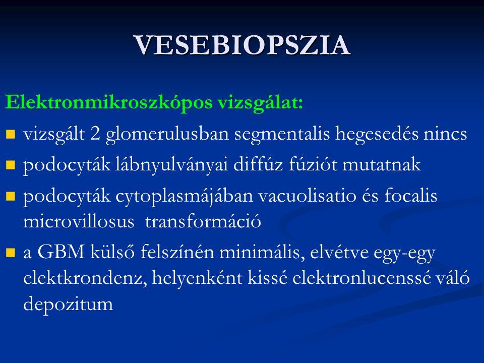 VESEBIOPSZIA Elektronmikroszkópos vizsgálat: