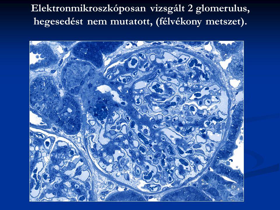 Elektronmikroszkóposan vizsgált 2 glomerulus,