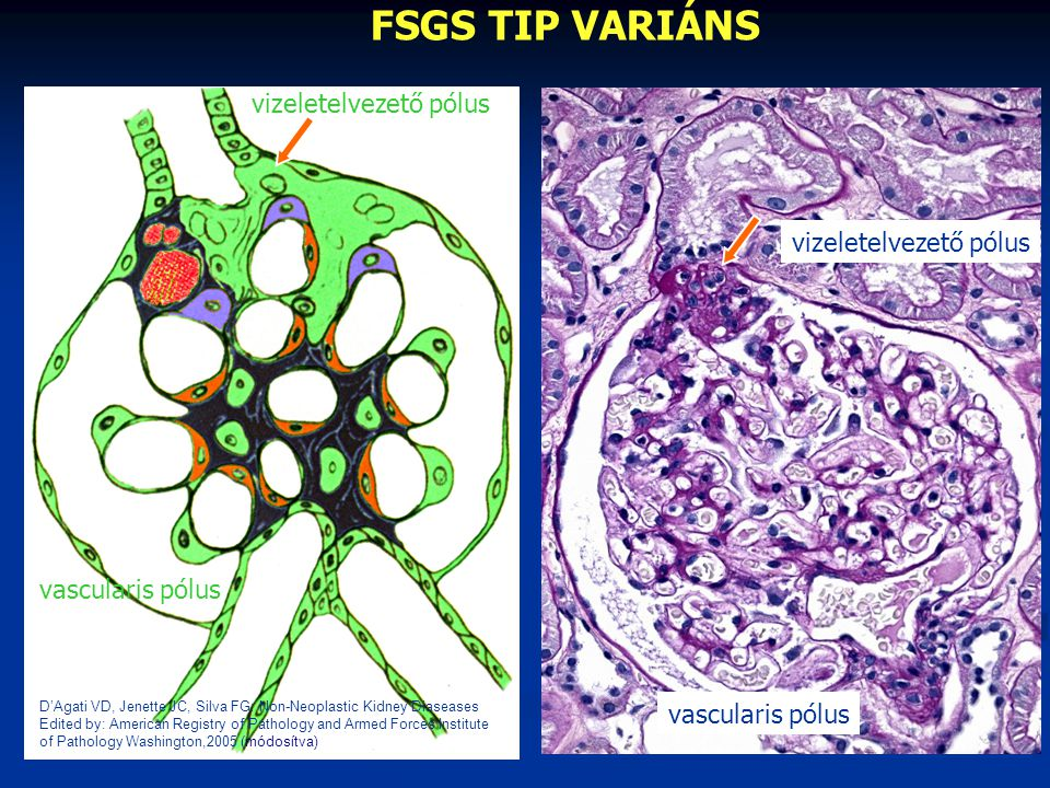 FSGS TIP VARIÁNS vizeletelvezető pólus vizeletelvezető pólus