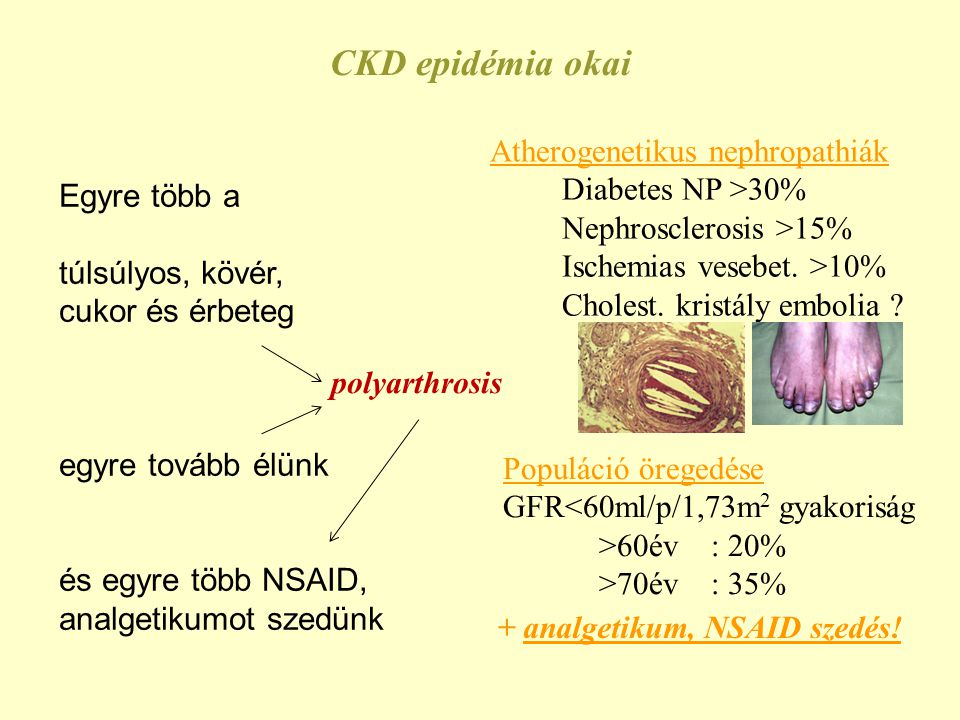 CKD epidémia okai Atherogenetikus nephropathiák Diabetes NP >30%
