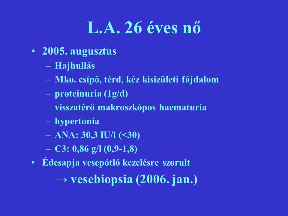 L.A. 26 éves nő → vesebiopsia (2006. jan.) 2005. augusztus Hajhullás