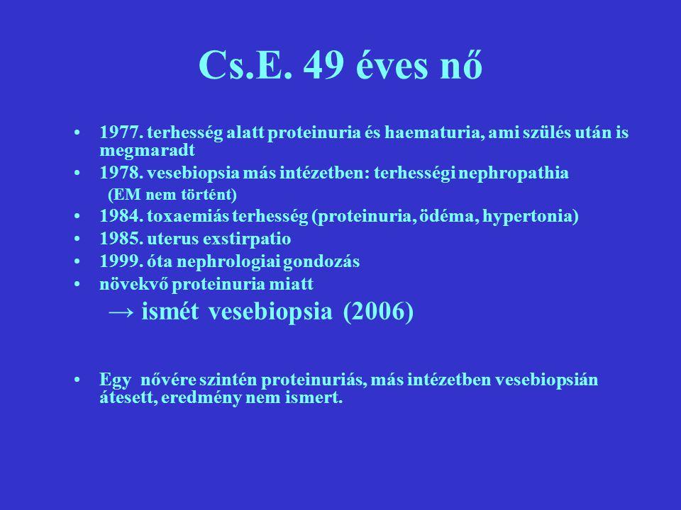 Cs.E. 49 éves nő → ismét vesebiopsia (2006)