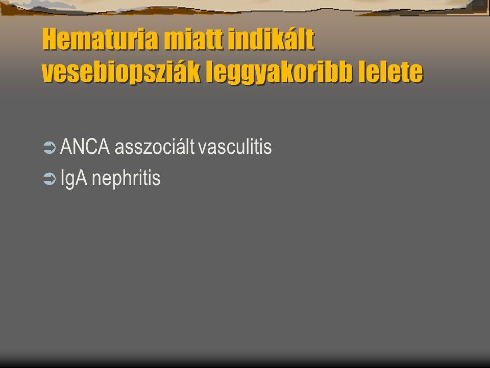 Hematuria miatt indikált vesebiopsziák leggyakoribb lelete