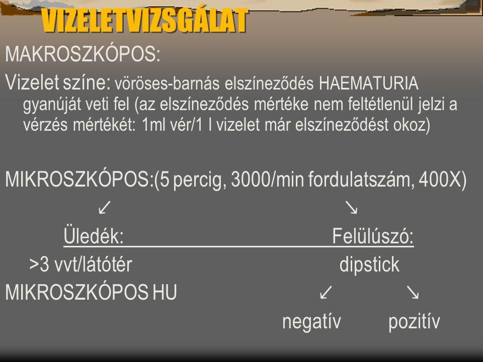 VIZELETVIZSGÁLAT MAKROSZKÓPOS: