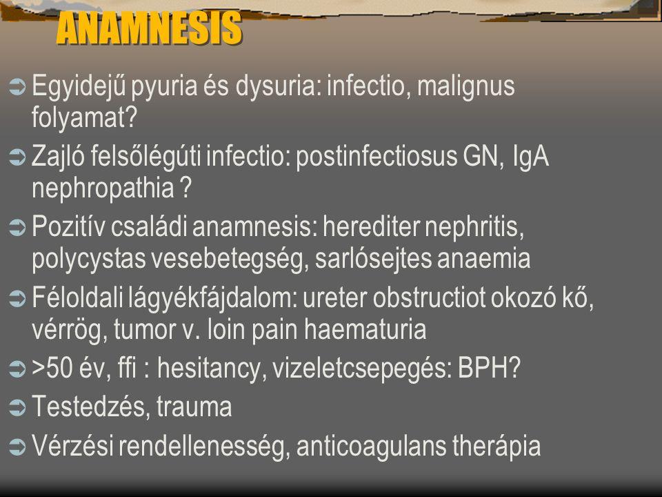 ANAMNESIS Egyidejű pyuria és dysuria: infectio, malignus folyamat
