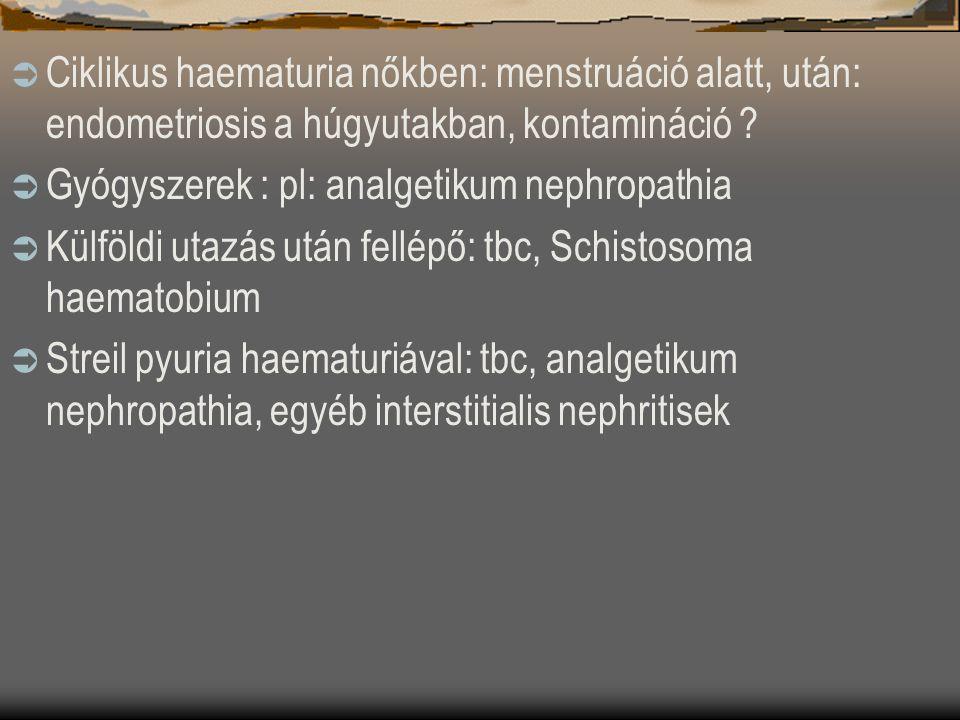 Ciklikus haematuria nőkben: menstruáció alatt, után: endometriosis a húgyutakban, kontamináció