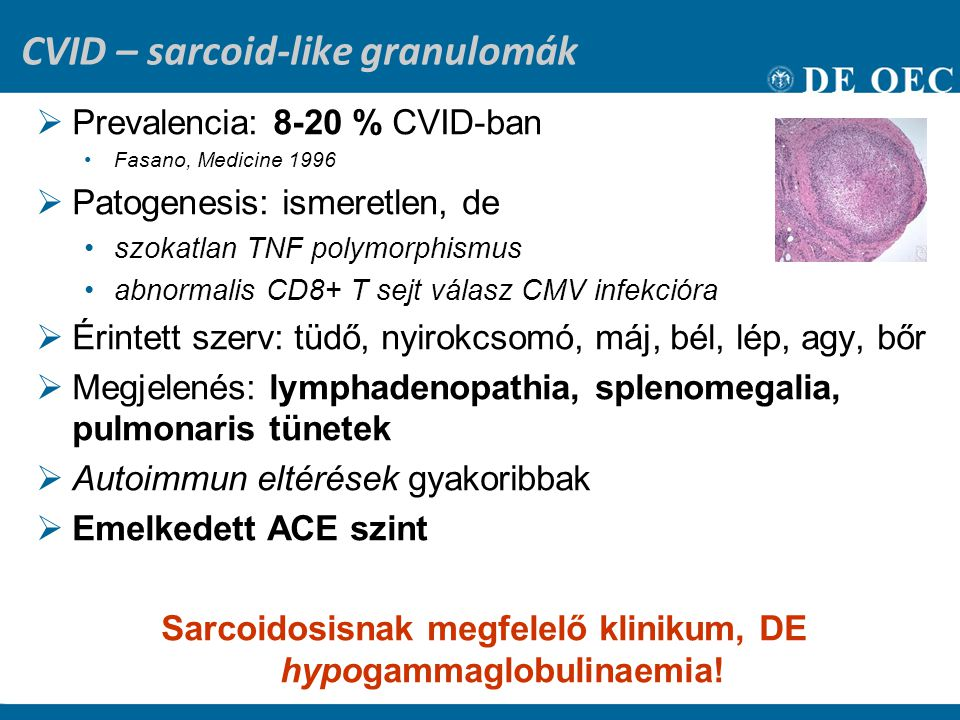 CVID – sarcoid-like granulomák