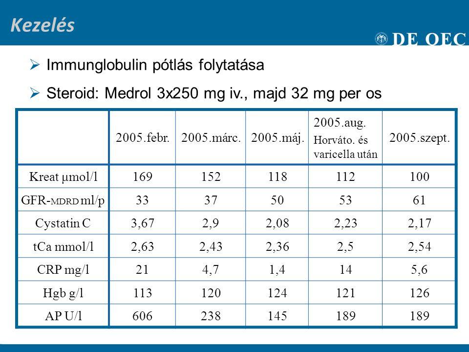 Kezelés Immunglobulin pótlás folytatása