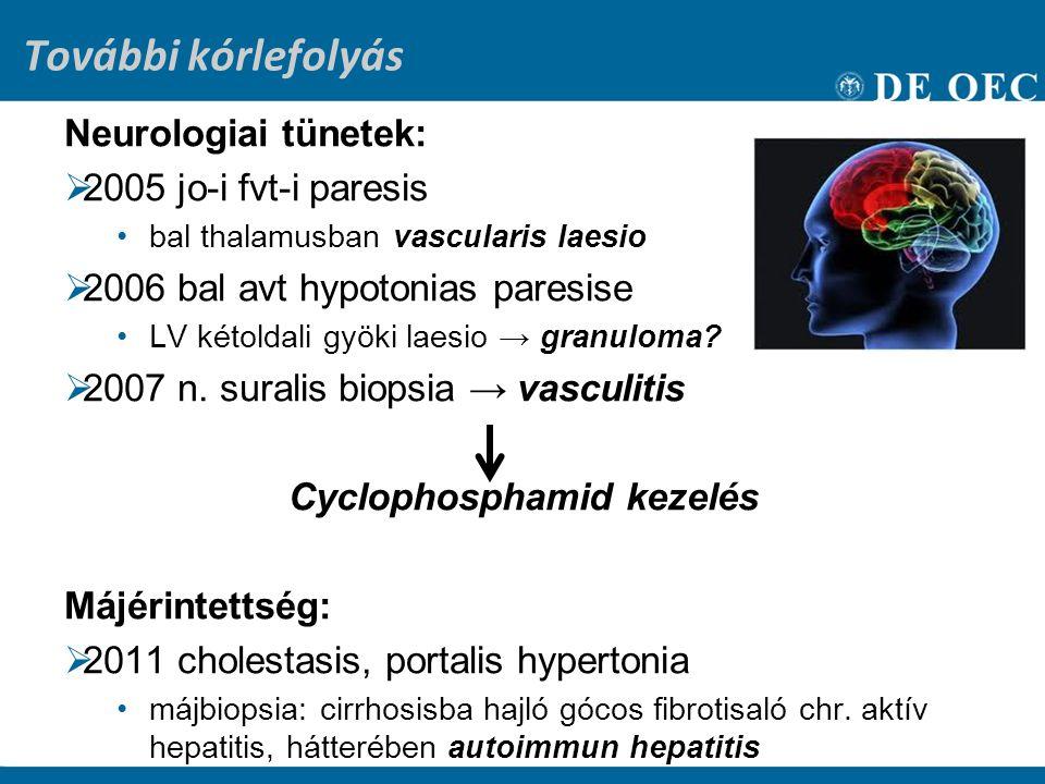 Cyclophosphamid kezelés