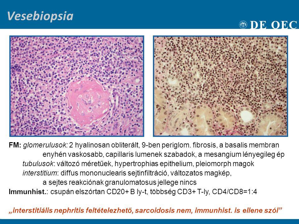 Vesebiopsia FM: glomerulusok: 2 hyalinosan obliterált, 9-ben periglom. fibrosis, a basalis membran.