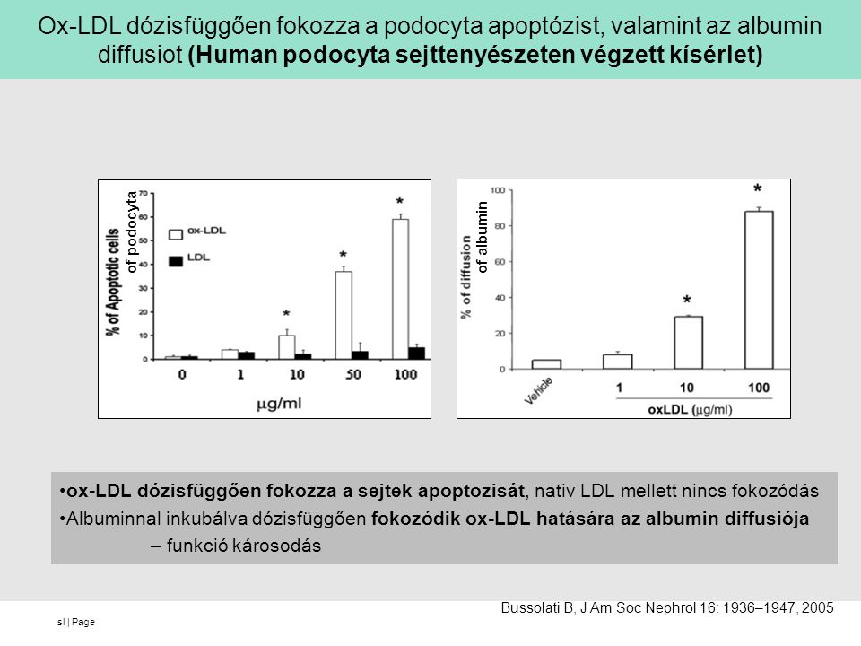 Ox-LDL dózisfüggően fokozza a podocyta apoptózist, valamint az albumin diffusiot (Human podocyta sejttenyészeten végzett kísérlet)