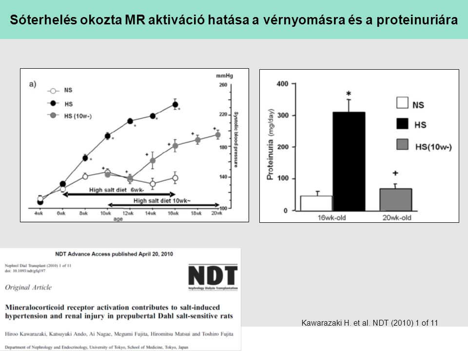 Sóterhelés okozta MR aktiváció hatása a vérnyomásra és a proteinuriára