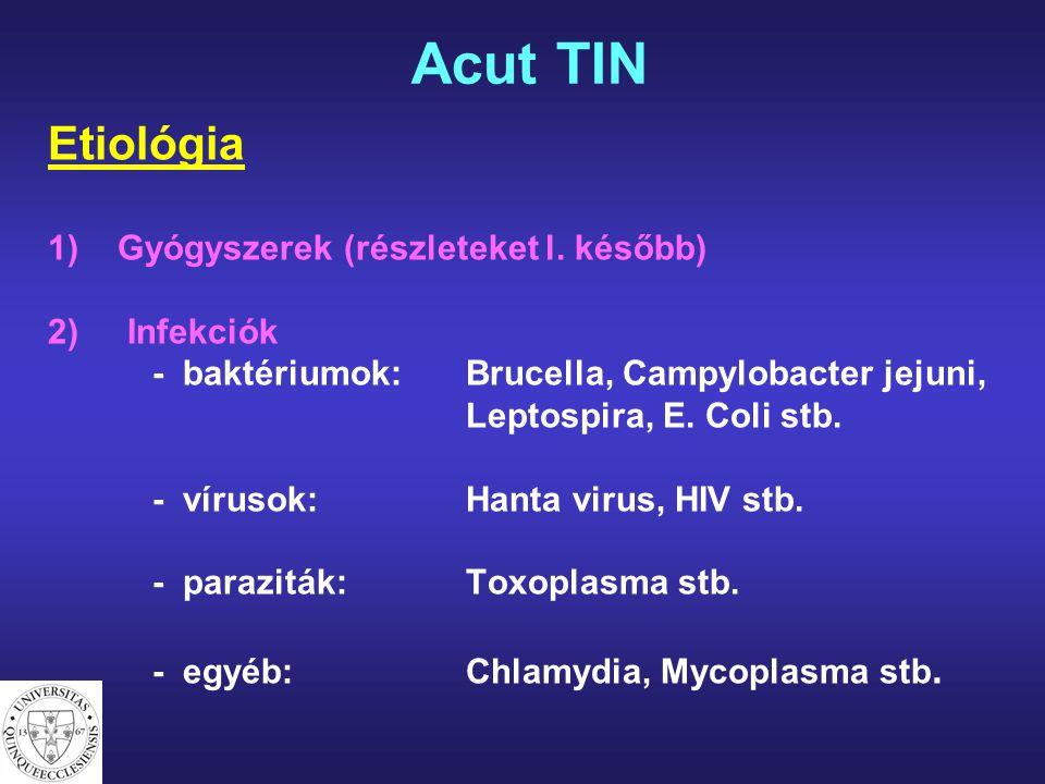 Acut TIN Etiológia Gyógyszerek (részleteket l. később) 2) Infekciók