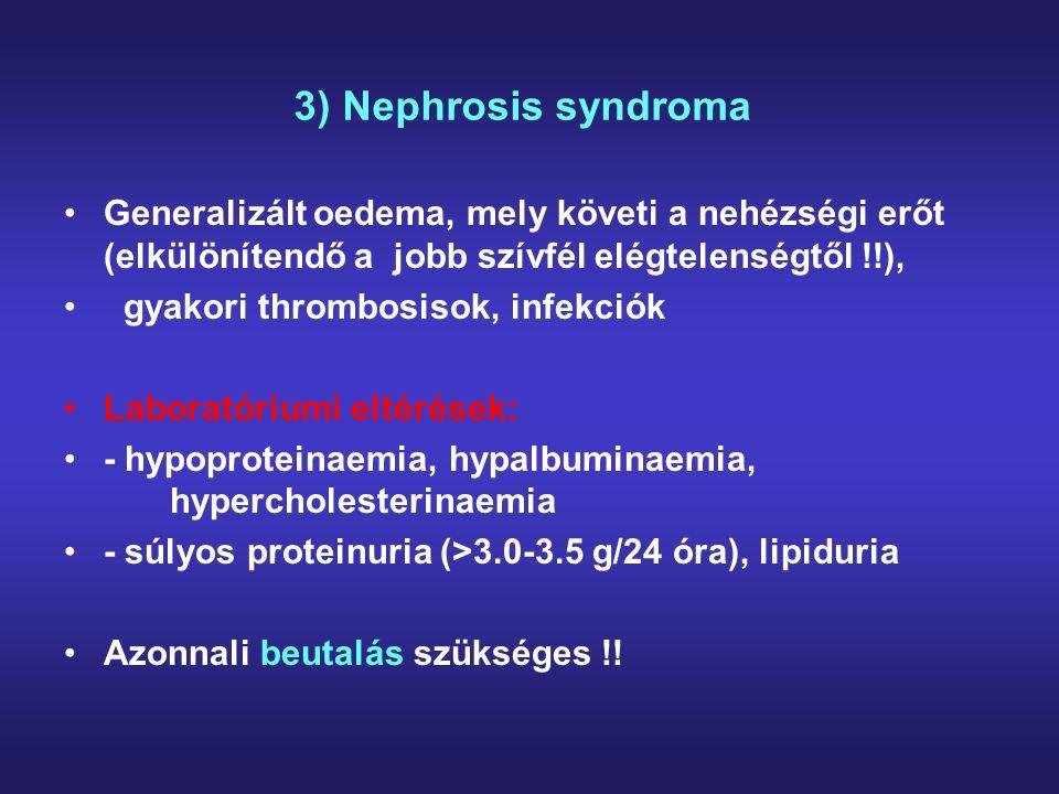 3) Nephrosis syndroma Generalizált oedema, mely követi a nehézségi erőt (elkülönítendő a jobb szívfél elégtelenségtől !!),