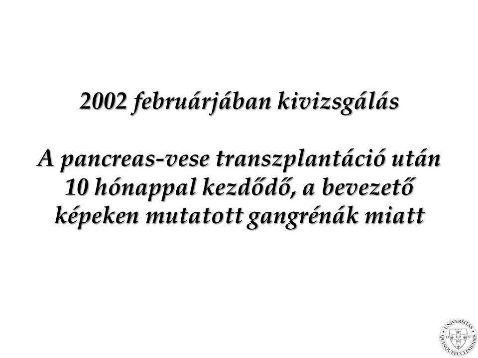2002 februárjában kivizsgálás A pancreas-vese transzplantáció után 10 hónappal kezdődő, a bevezető képeken mutatott gangrénák miatt