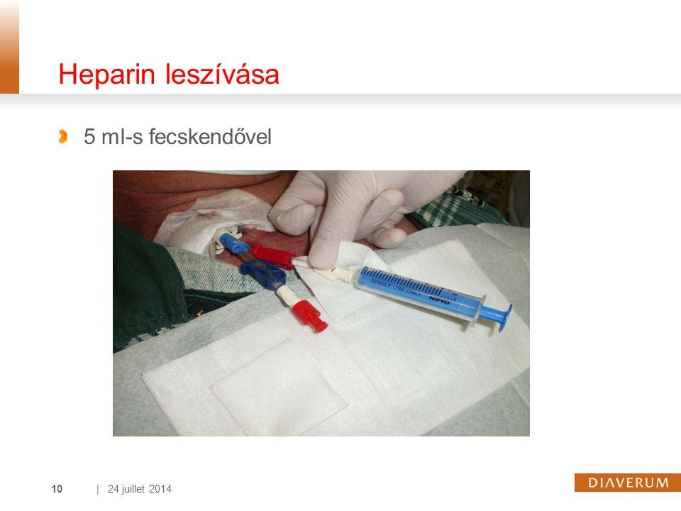 Heparin leszívása 5 ml-s fecskendővel