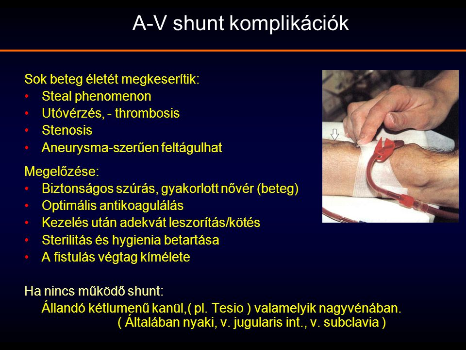 A-V shunt komplikációk