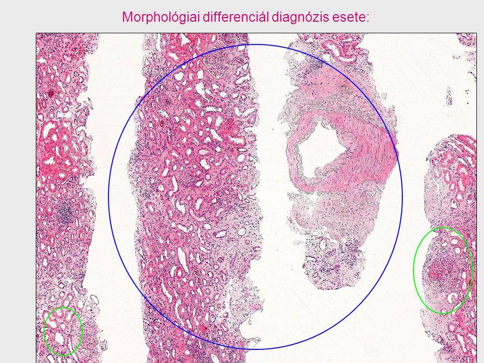 Morphológiai differenciál diagnózis esete: