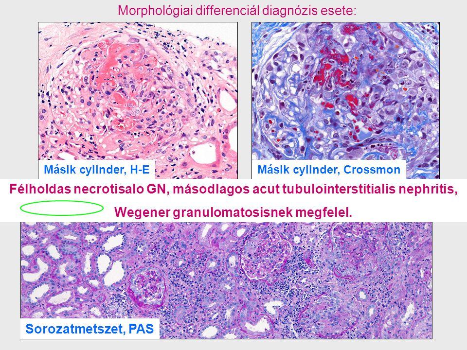 Másik cylinder, Crossmon Wegener granulomatosisnek megfelel.