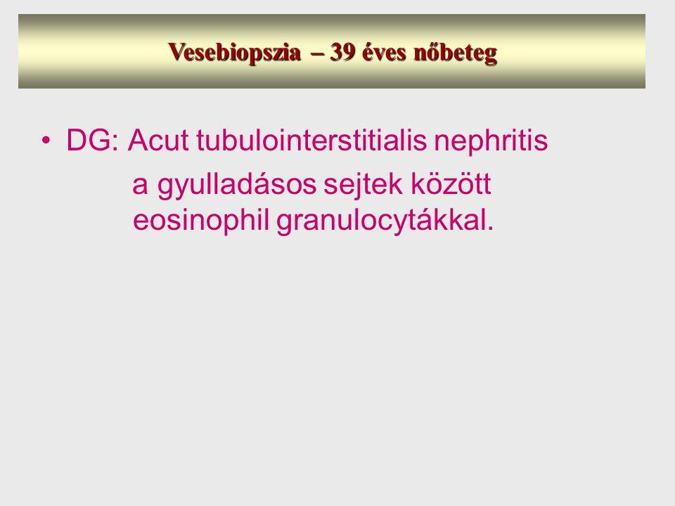 Vesebiopszia – 39 éves nőbeteg