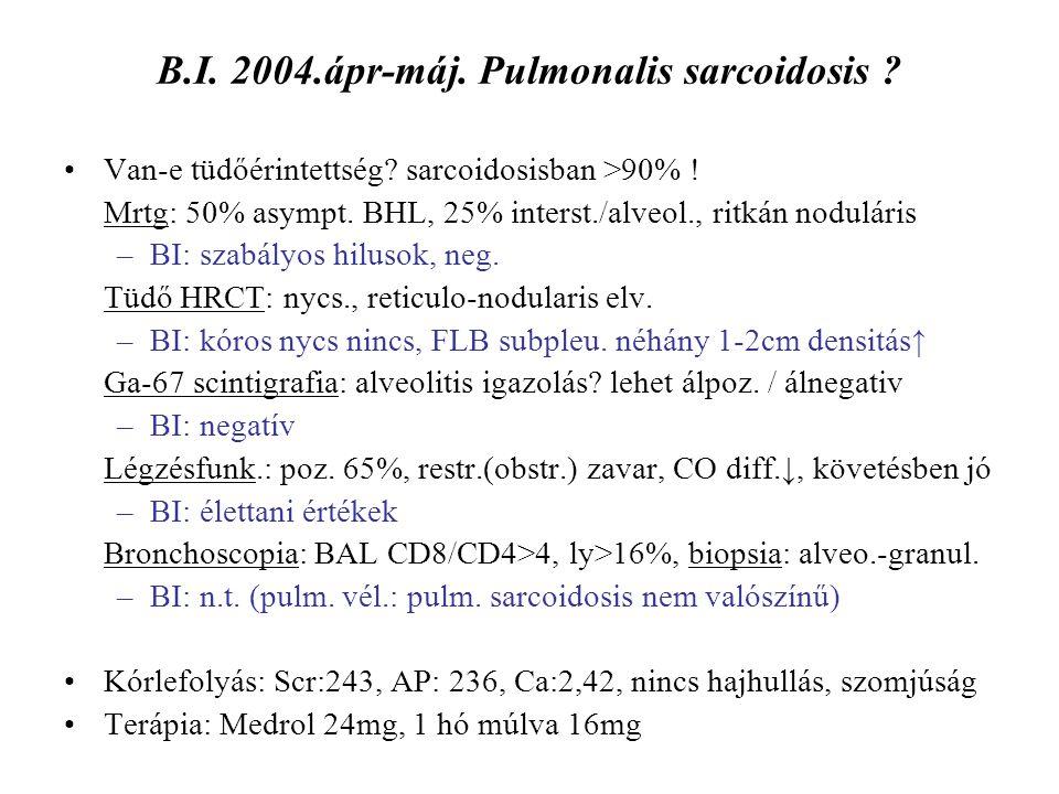 B.I. 2004.ápr-máj. Pulmonalis sarcoidosis