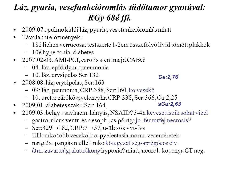 Láz, pyuria, vesefunkcióromlás tüdőtumor gyanúval: RGy 68é ffi.