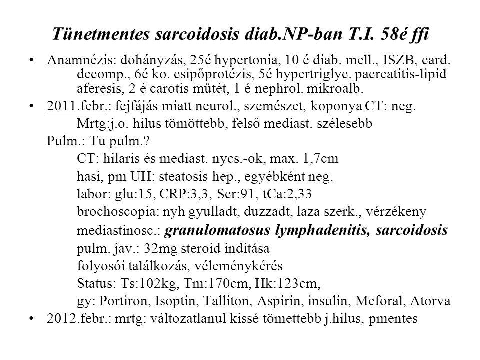 Tünetmentes sarcoidosis diab.NP-ban T.I. 58é ffi