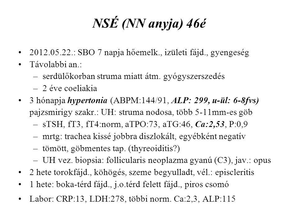 NSÉ (NN anyja) 46é 2012.05.22.: SBO 7 napja hőemelk., izületi fájd., gyengeség. Távolabbi an.: serdülőkorban struma miatt átm. gyógyszerszedés.