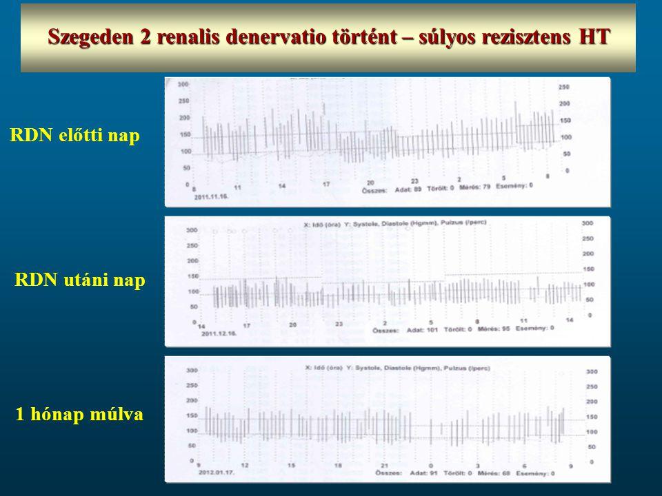 Szegeden 2 renalis denervatio történt – súlyos rezisztens HT