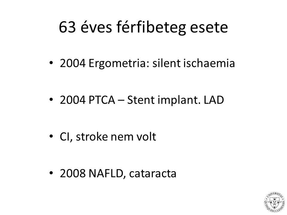 63 éves férfibeteg esete 2004 Ergometria: silent ischaemia