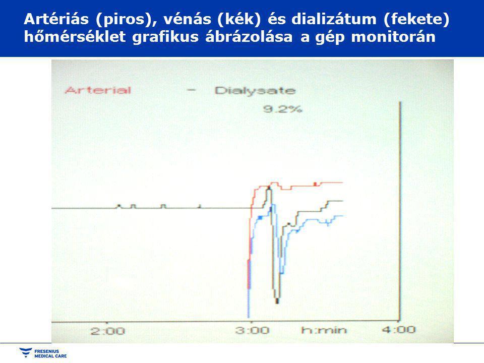 Artériás (piros), vénás (kék) és dializátum (fekete) hőmérséklet grafikus ábrázolása a gép monitorán