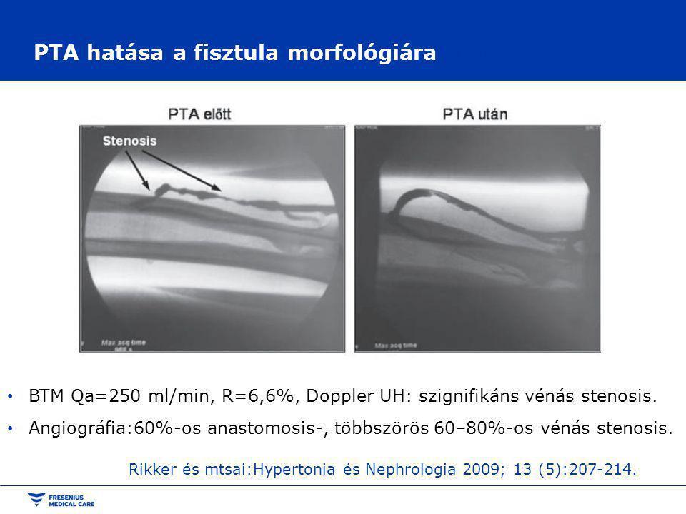 PTA hatása a fisztula morfológiára a morfológiára