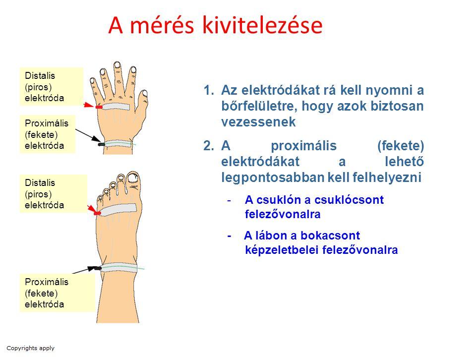 A mérés kivitelezése Distalis (piros) elektróda. Az elektródákat rá kell nyomni a bőrfelületre, hogy azok biztosan vezessenek.