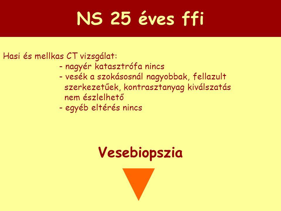NS 25 éves ffi Vesebiopszia Hasi és mellkas CT vizsgálat:
