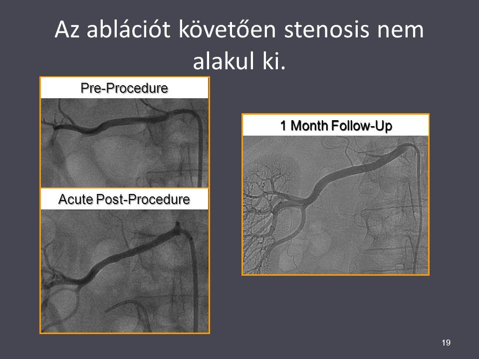Az ablációt követően stenosis nem alakul ki.