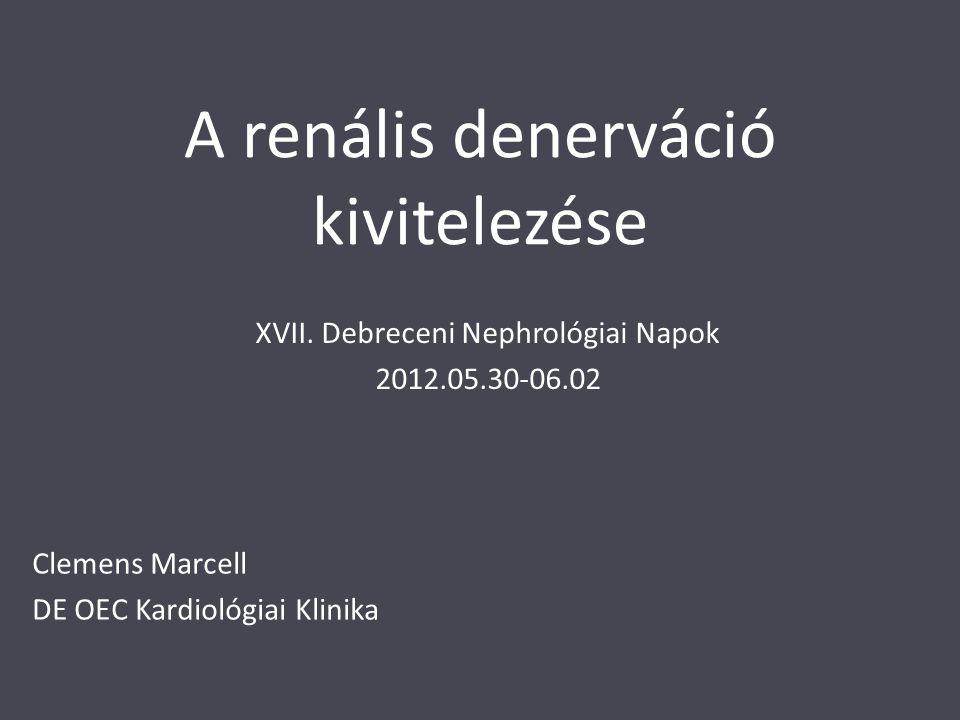 A renális denerváció kivitelezése