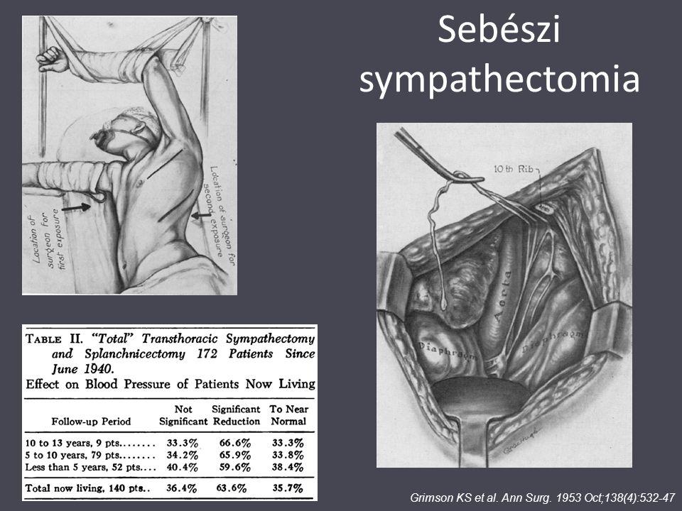 Sebészi sympathectomia