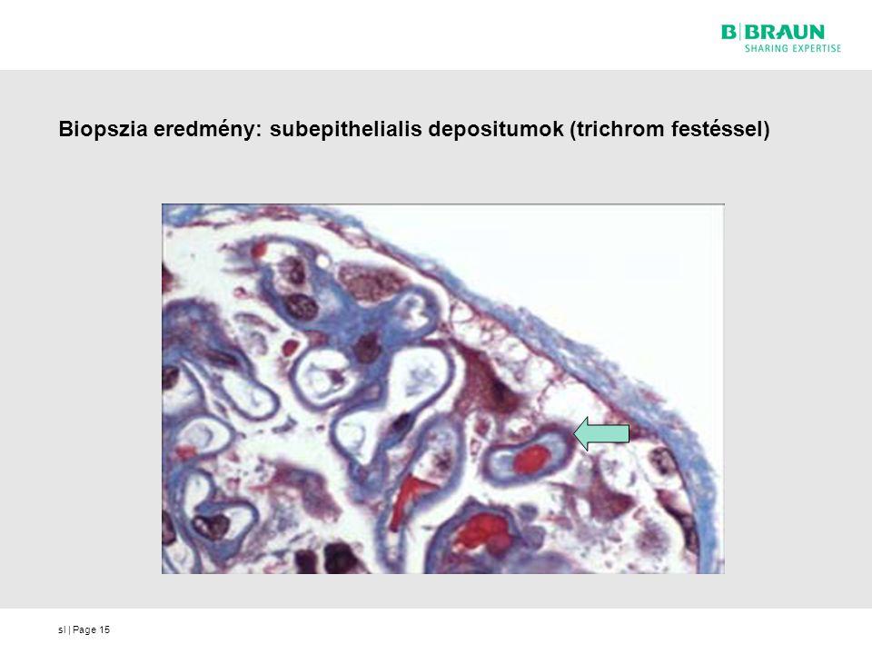 Biopszia eredmény: subepithelialis depositumok (trichrom festéssel)