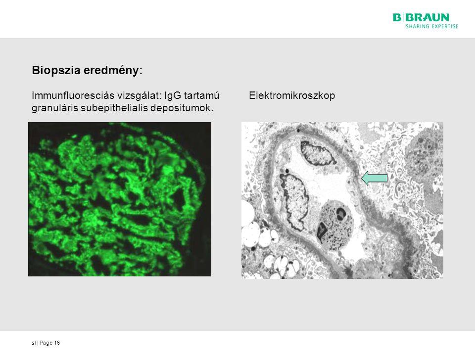 Biopszia eredmény: Immunfluoresciás vizsgálat: IgG tartamú granuláris subepithelialis depositumok.
