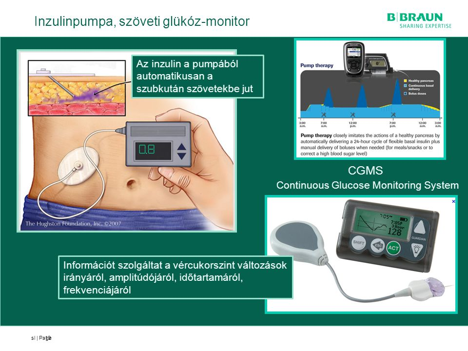 Continuous Glucose Monitoring System