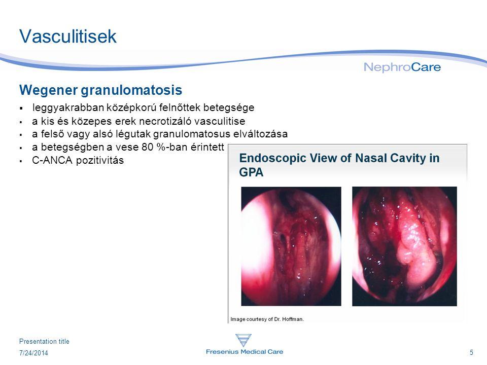 Vasculitisek Wegener granulomatosis