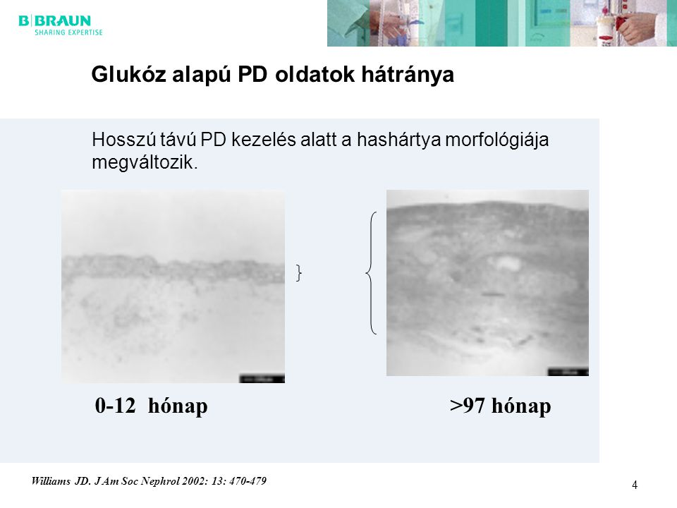 Glukóz alapú PD oldatok hátránya
