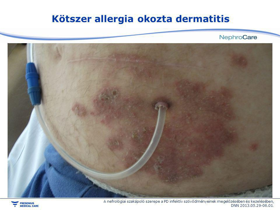 Kötszer allergia okozta dermatitis