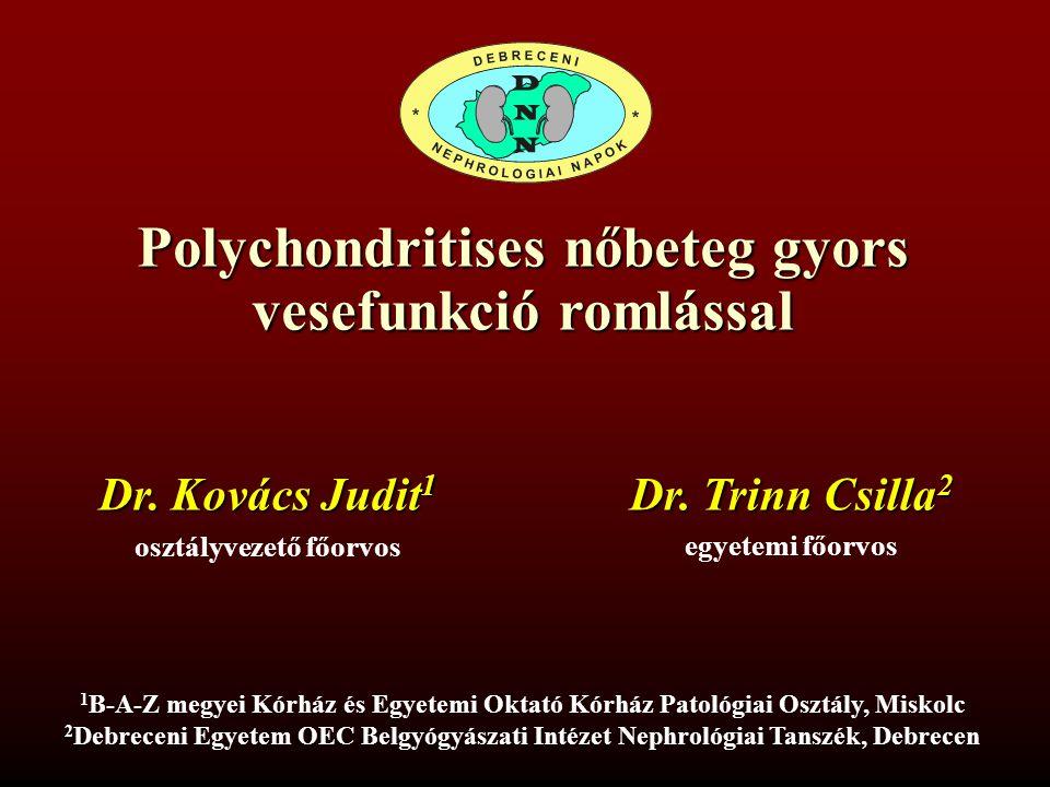 Polychondritises nőbeteg gyors vesefunkció romlással
