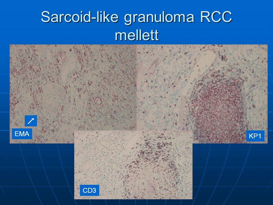 Sarcoid-like granuloma RCC mellett