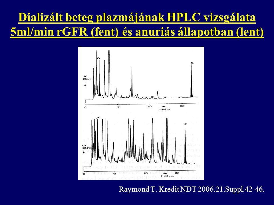 Dializált beteg plazmájának HPLC vizsgálata 5ml/min rGFR (fent) és anuriás állapotban (lent)