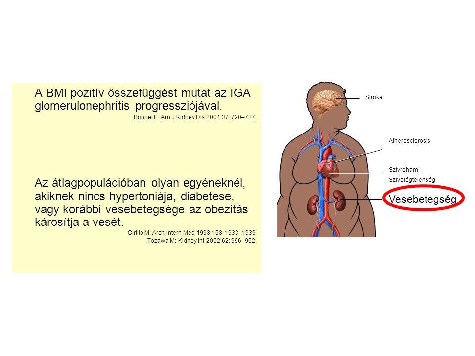 A BMI pozitív összefüggést mutat az IGA glomerulonephritis progressziójával.