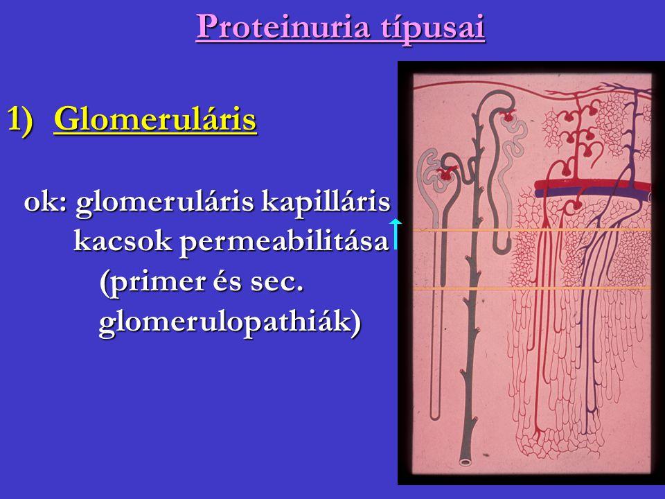 Proteinuria típusai 1) Glomeruláris ok: glomeruláris kapilláris